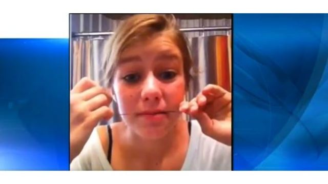 Dangers of do it yourself braces teens take up bizarre trend klfy dangers of solutioingenieria Images